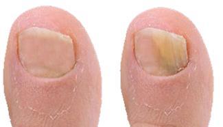 Unghia dei piedi affette da onicomicosi